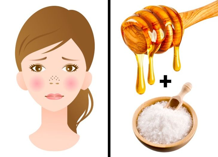 beauty tip for skin: tap aware acne and scar